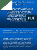 Spect – tomografie computerizata cu emisie