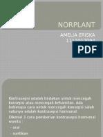 Norplant