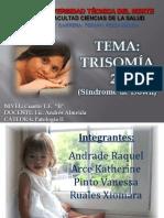 1-Trisomía 21 Síndrome de Down