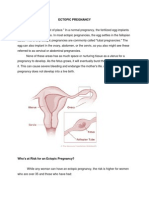 ECTOPIC PREGNANCY.docx