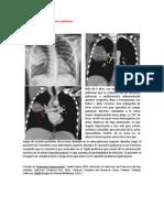 A primera vista 412 (Secuestro pulmonar).docx