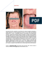 A primera vista 413 (Sífilis papulonodular).docx