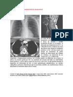 A primera vista 417 (Enfermedad de Pott de columna dorsal).docx