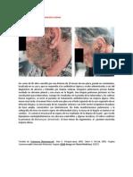 A primera vista 419 (Blastomicosis cutánea).docx