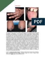 A primera vista 422 (Epidermolisis bullosa).docx