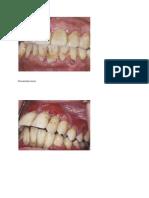 Periodontitis kronic