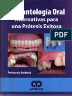 Implantología Oral Alternativas Para Una Prótesis Exitosa