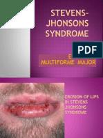Stevens- Jhonsons Synnnnndrome
