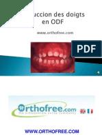 177299374 5 Succion Des Doigts en Orthodontie