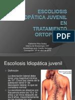 Escoliosis idiopatica juvenil