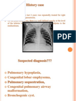 Congenital Lung Malformations