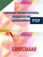 Linfomas, Trombocitopenia, Trombocitosis, Esplenomegalia