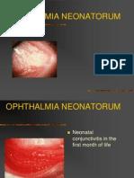 Ophthalmia neonatorum,