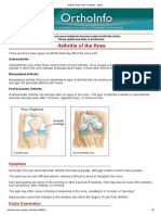 Arthritis of the Knee -OrthoInfo - AAOS