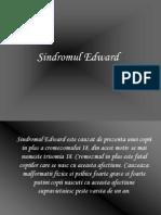 Sindromul Edward