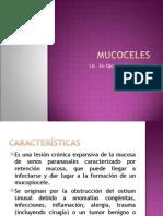 Mucoceles