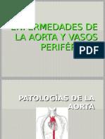 ENFERMEDADES DE LA AORTA Y VASOS PERIFÉRICOS