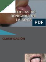 Neoplasias Benignas de la Boca
