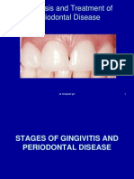 Diagnosis and Treatment of Periodontal Disease