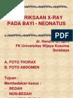 Pemeriksaan X-ray Pada Bayi - Neonatus