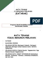 Katarak 4 Print