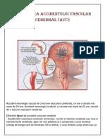 Prevenirea Accidentului Vascular Cerebral