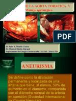Aneurisma de Aorta Toracica - Abdominal