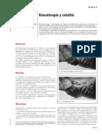 Kinesiterapia y Celulitis