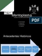 Mentoplastia
