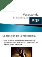 Vasectomia Sin Bisturi