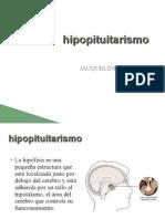 hipopituitarismo[1]