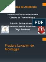 Fractura Luxación de Monteggia y Galeazzi