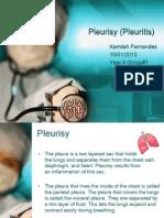 Pleurisy (Pleuritis)