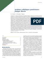 Composite Post Methode Directe