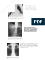 Gambar Kelainan Pada Radiologi