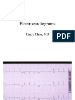 EKGs - Students