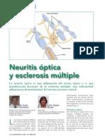 Neuritis Optica y Esclerosis Mltiple
