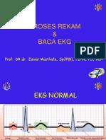 EKG normal btcls.ppt