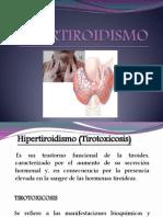 Hipertitoidismo