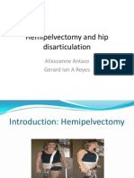 Hemipelvectomy and Hip Disarticulation