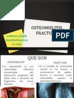 Osteomielitis , Fracturas