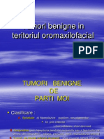 Tumori in Teritoriul Oromaxilofacial