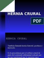 Hernia Crural Ipn 2003-4