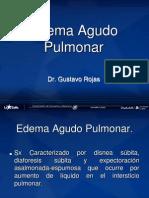 5.- Edema Agudo Pulmonar 5.-_eap17380