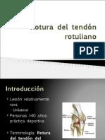 Rotura del tendón rotuliano y del aquíleo