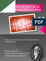 Historia Natural de La Enfermedad Periodontal[1]