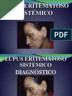Lupus Analia