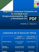 Dr. Andrés Osuna Algunas lesiones comunes en la cavidad oral.ppsx