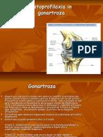 Kinetoprofilaxia in gonartroza