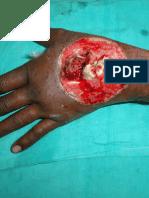 Occupational Hand Injury Prevention.  In Marathi